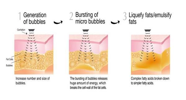 Imploderen van vetcellen met de Bodyshaper